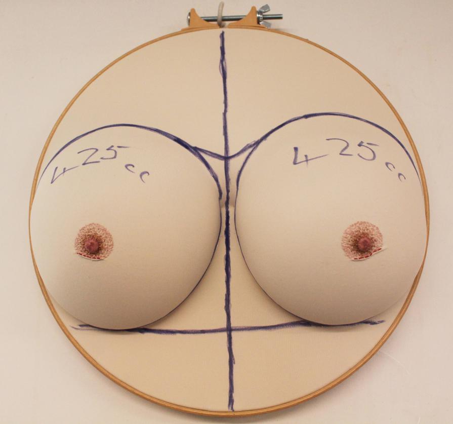 sally-hewett-masectomy-boobs-scupture